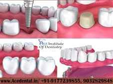 Dental courses in India Nearme