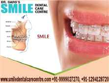 Best Orthodontist For Braces Treatment in Faridabad