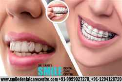 Best Invisible Aligner Treatment in India Faridabad Location