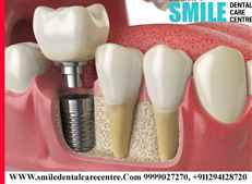 Dental Implant Clinic in Faridabad in Affordable Price