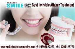 Best Invisible Aligner Clear Treatment