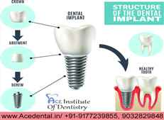 Advanced Dental implant courses in India at Ace Institute of Dentistry