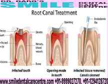 Painless Root Canal Treatment in Faridabad Book Appointment