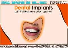 Best Dental Implant Clinics in Faridabad Area