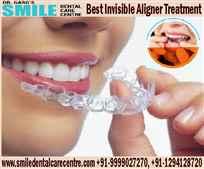 Best Dental Implant Treatments in Faridabad Location