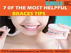 Best Braces Treatment in Faridabad with Latest Technology