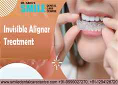 How Long Does Invisible Aligner Treatment Take To Complete