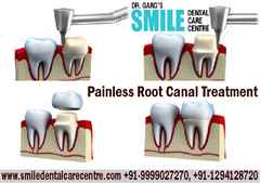 Painless Root Canal Treatment in Our Dental Clinic Faridabad